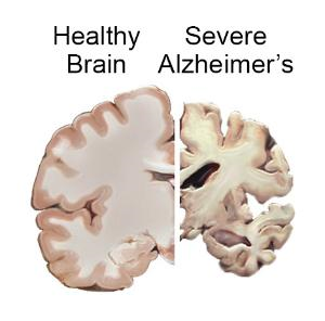 A diagram showing a healthy brain and a brain that has been affected by Alzheimer's and shows signs of decay.